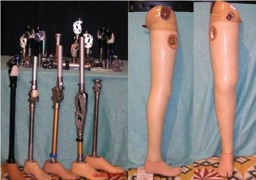 Chân giả trên gối: Được hiểu là các loại chân giả khác nhau cung cấp cho các trường hợp phải cắt cụt phía trên đầu gối.