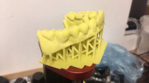 in 3D mẫu hàm răng dùng trong nha khoa